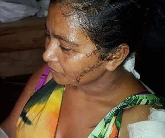 Hombre intenta asesinar a su pareja  en Nueva Guinea Managua/Radio La Primerísima