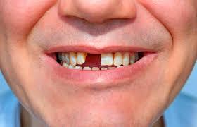 Pérdida de dientes, la nueva secuela de la Covid-19 Washington. Prensa Latina