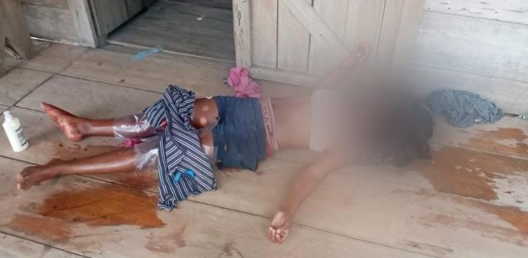 Adolescente recibe varios machetazos por su expareja Managua. Radio La Primerísima