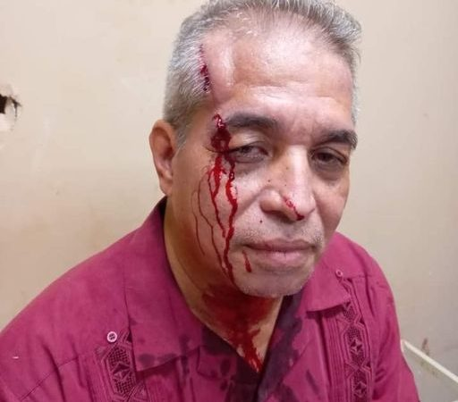 Sujetos agreden a reverendo por robarle su celular dentro de hospital Managua. Radio La Primerísima